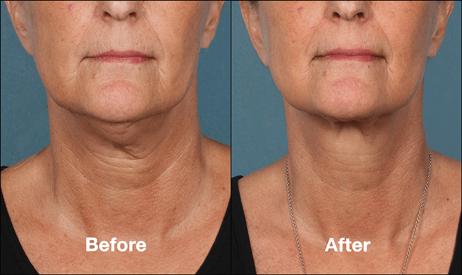 kybella before and after vancouver washington