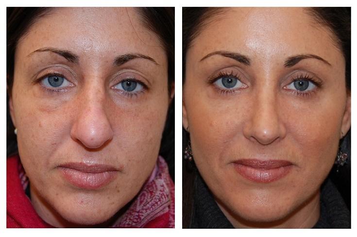 Ipl Photofacial Rejuventation Treatment At Camas Medspa