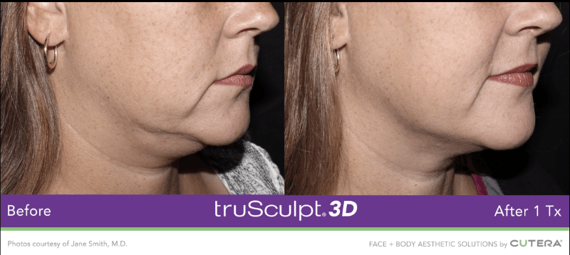 before and after trusculpt