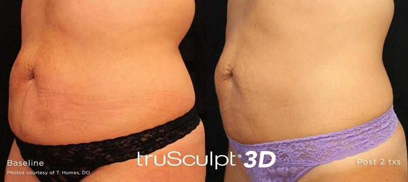 TruSculpt 3D
