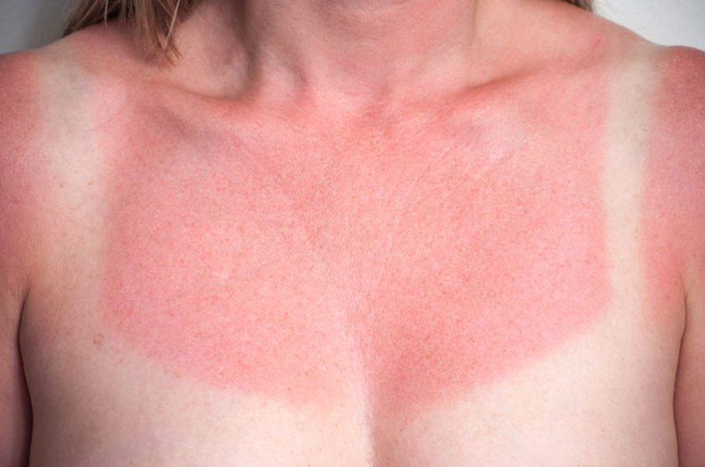 Home remedies that will soothe your sunburn in a pinch!