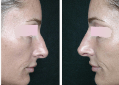Non Surgical Nose Job at Camas Medspa