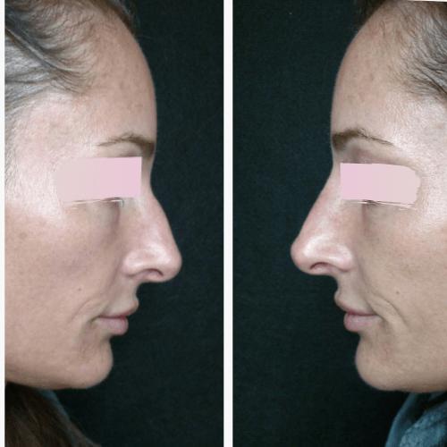 Non Surgical Nose Job at Camas Medspa