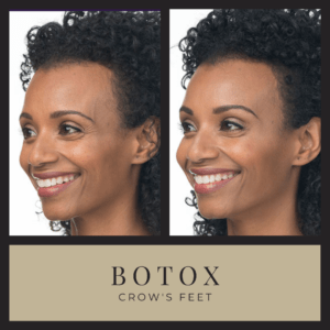 botox for crows feet