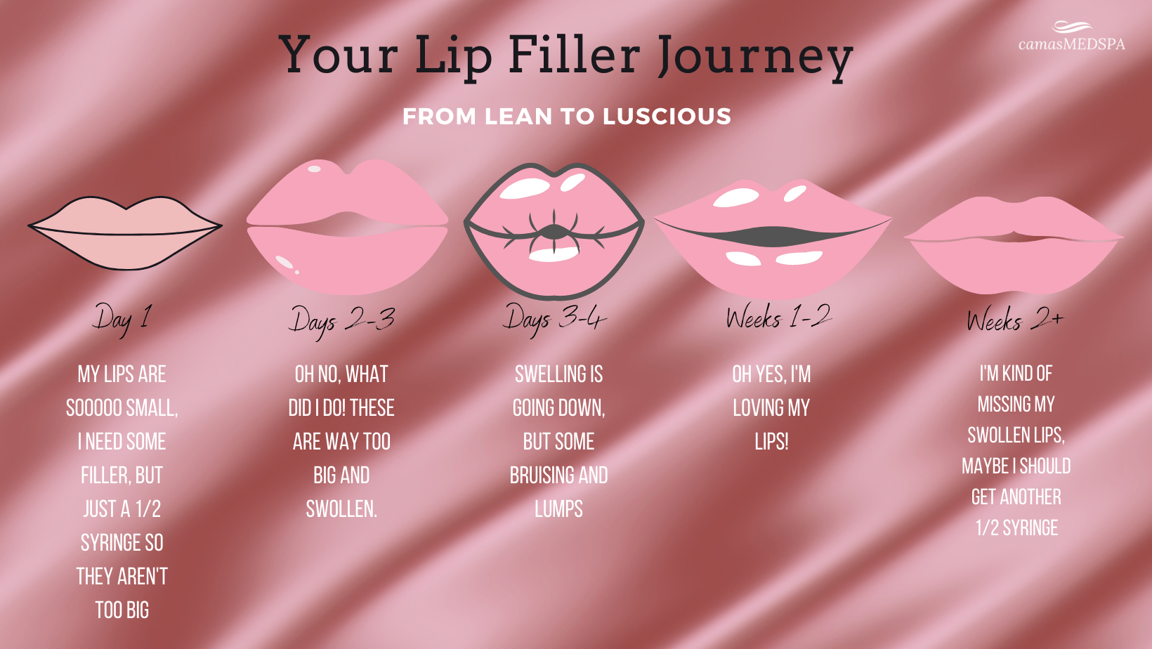 the lip filler journey