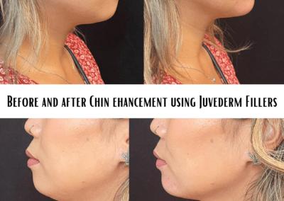 Chin enhancement