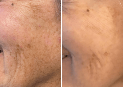 chemcial peels before and after